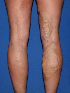 Dilatación venosa permanente (varices).
