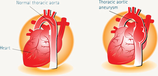 La dilatación de la aorta torácica