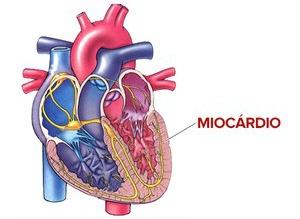 miocardio.