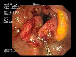 esplénico del colon descendente.