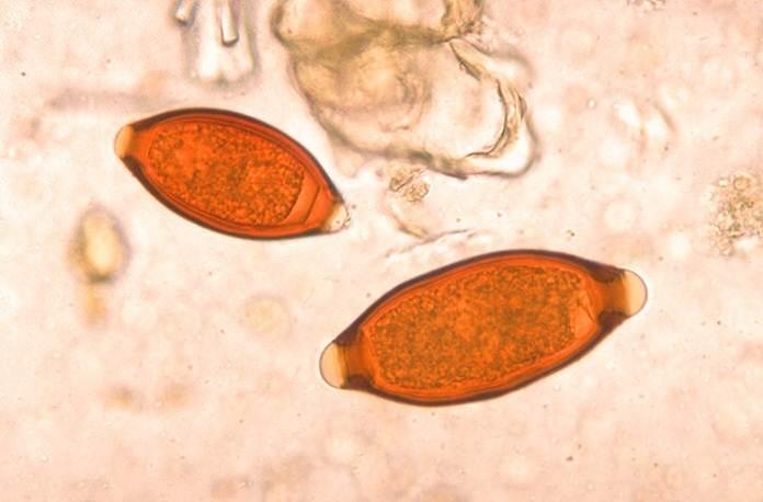 Anemias infecciosas y parasitarias.
