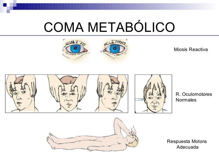 Coma Metabólico.