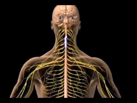 mononeuritis múltiple