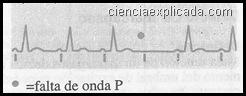 Bloqueo SA de II grado (tipo II)