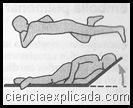Coma cerebral (2)