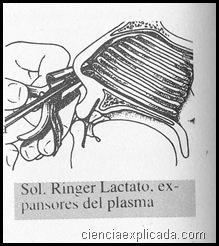 Epistaxis (3)