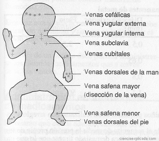 Acceso venoso - Ciencia Explicada