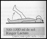 Lipotimia por calor