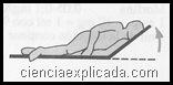 Traumatismos craneocerebrales (1)