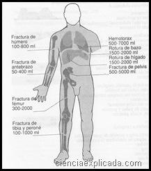 Traumatismos de las extremidades