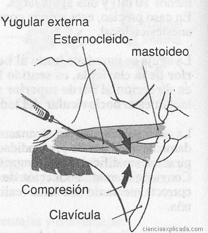 Cateterización de la vena yugular externa - Ciencia Explicada