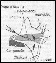 cateter de yugular externa