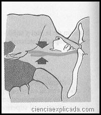 comprension del seno carotideo