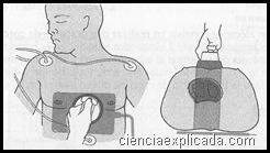 desfribilacion-Posición anteroposterior