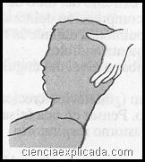 intubacion ciega orotraqueal
