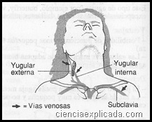 vias venosas centrales